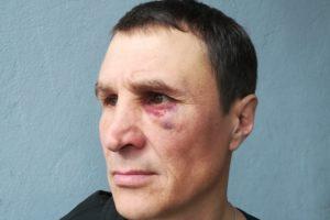 Ангарчанин заявляет, что стал жертвой зверства полицейских