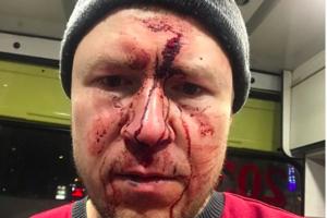 Уфимского адвоката избили при обыске у его подзащитной